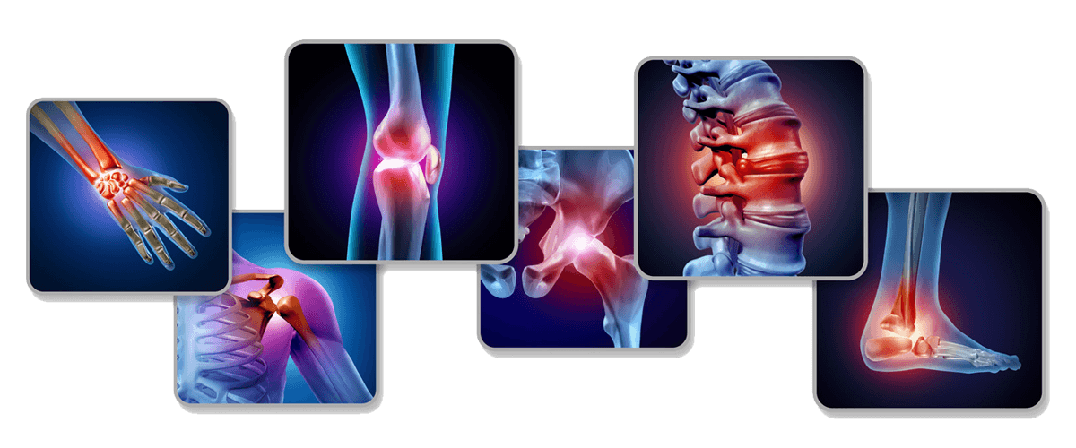 Collection of x-rays showing painful joints in spine, shoulder, knee, hip foot and hand
